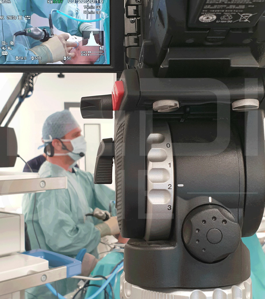 Camera with surgeon in action behind in OR